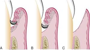 Gingival Curettage Treatment